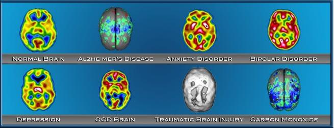 brainspectscan.png